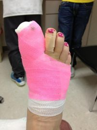 589d14db4f8fdf096f16372f425b1ba5--broken-toe--year-anniversary
